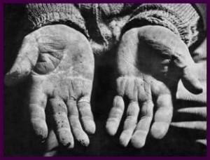 pobres 300x228 'No sofrimento, Deus luta pela vida e solidariza se com aquele que sofre'.